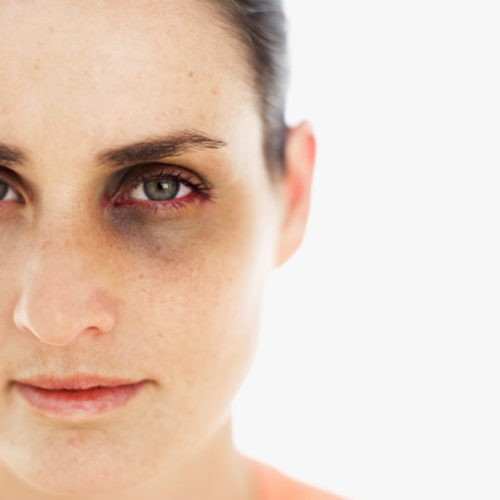 Violenza per 3 donne su 10 | Noi Mamme
