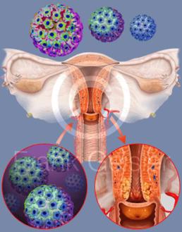 L'infezione da HPV | Noi Mamme