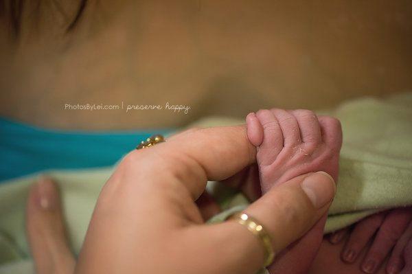 Il bambino con 6 dita - Foto di Leilani Rogers