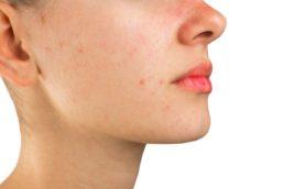 Rimedi naturali contro l'acne giovanile