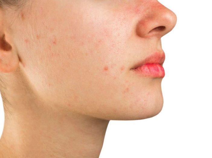 Rimedi naturali contro l'acne giovanile   Noi Mamme 1