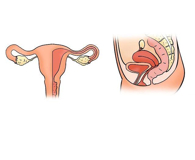 Endometriosi: che cos'è e come si cura | Noi Mamme 1