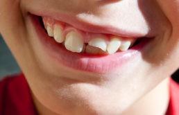 Cosa è meglio fare in caso di rottura di un dente da latte?