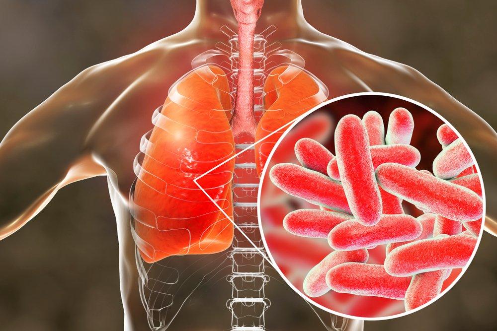 Allarme Legionella: i suggerimenti per evitare la contaminazione da batterio