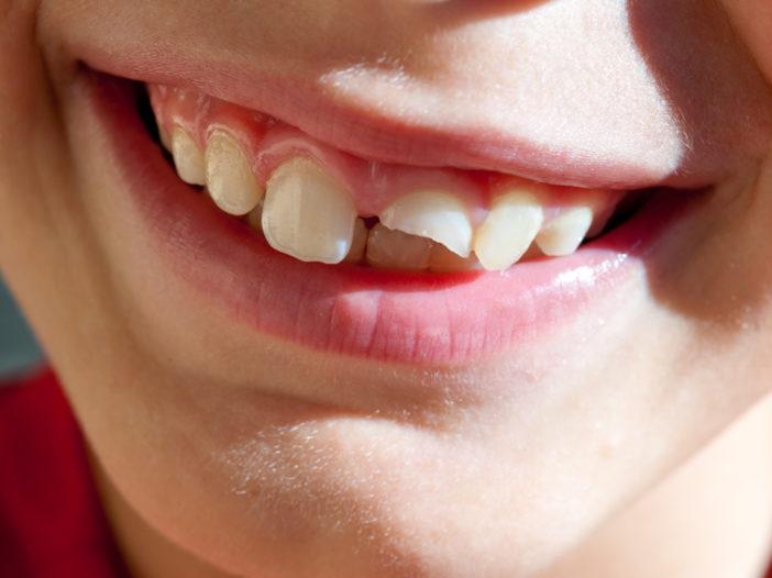 rottura dente da latte