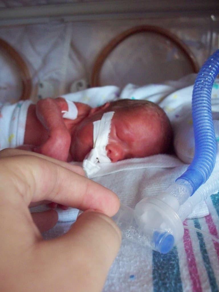 Brescia: Mosca (SIN), la prematurità é una malattia grave